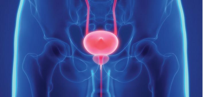 sintomi papilloma virus nelle donne papilloma intraduttale immagini