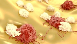 Lymphocytes attacking cancer cells