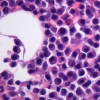 Myeloma cells (purple) in a patient's bone marrow, with a few normal cells in pink in the background.