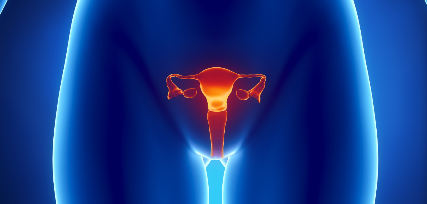 Standard Therapy For Newly Diagnosed Ovarian Cancer Enters New Era Cancer Health