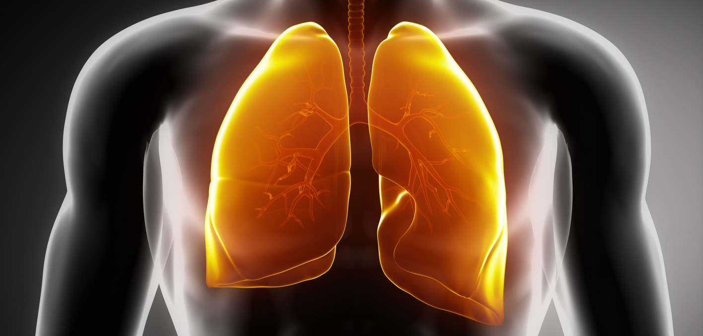 AIDS-Related Pneumonia Linked to Raised Lung Cancer Risk - POZ