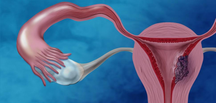 can hpv cause endometrial cancer