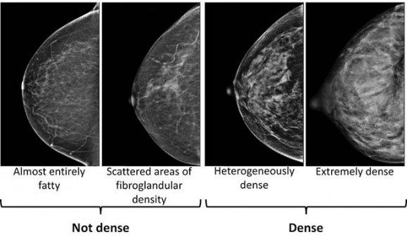 What S The Best Way To Screen Dense Breasts Cancer Health